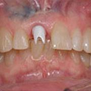 implants01