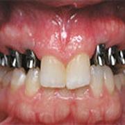 implants03