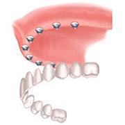 implants05