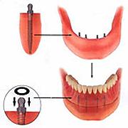 implants08
