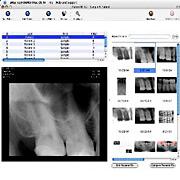 radiography01