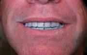 Denture_1